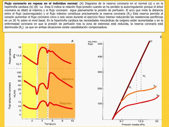 Flujo coronario en reposo en el individuo normal