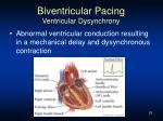 biventricular pacing ventricular dysynchrony