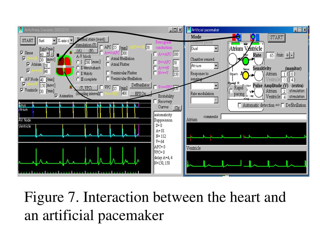 Figure 7. Interaction between the heart and an artificial pacemaker