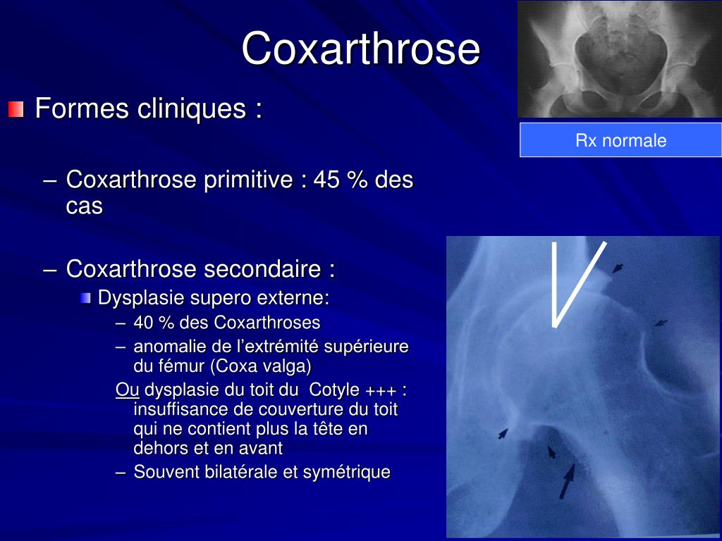 PPT - ARTHROSE PowerPoint Presentation - ID:877441