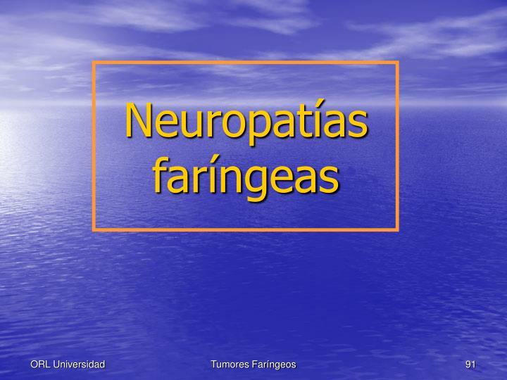 Neuropatías faríngeas