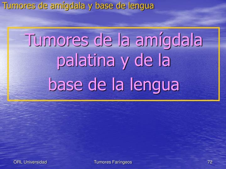 Tumores de amígdala y base de lengua