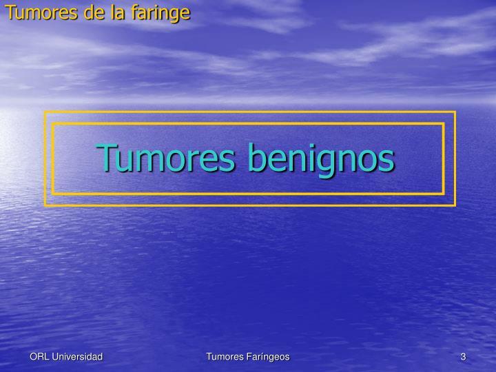 Tumores de la faringe1
