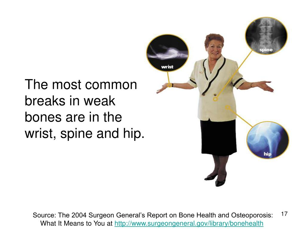 The most common breaks in weak bones are in the wrist, spine and hip.
