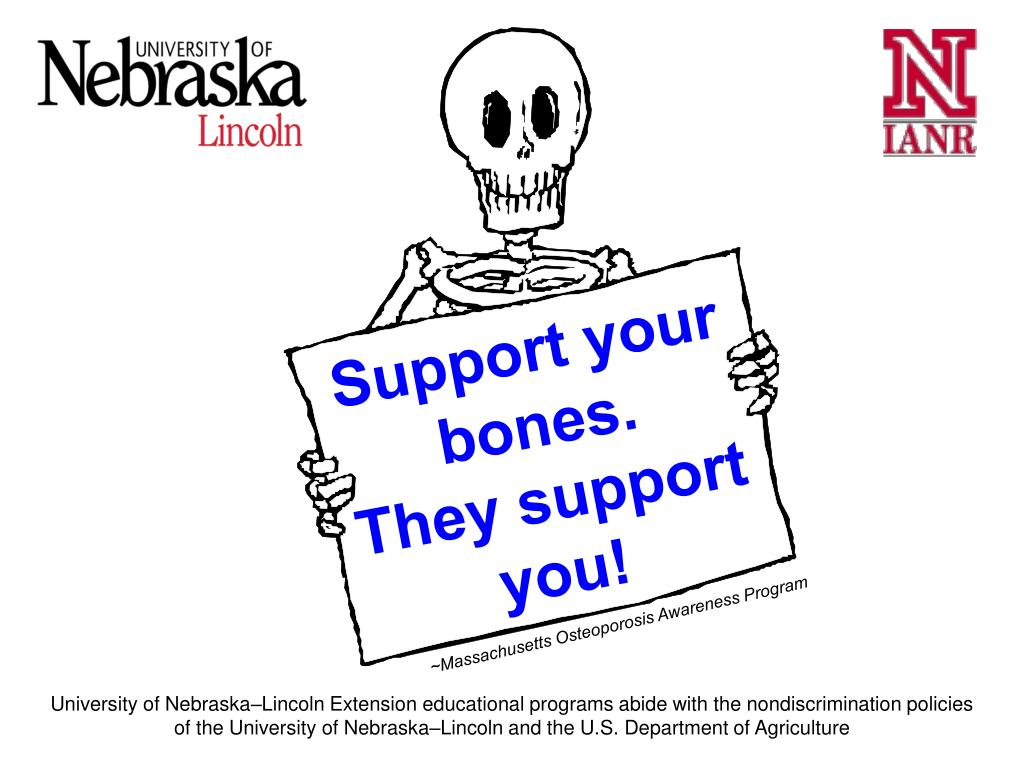 Support your