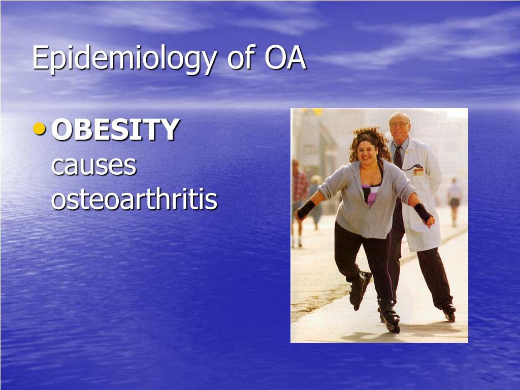 Epidemiology of OA