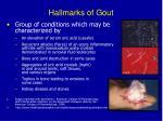 hallmarks of gout