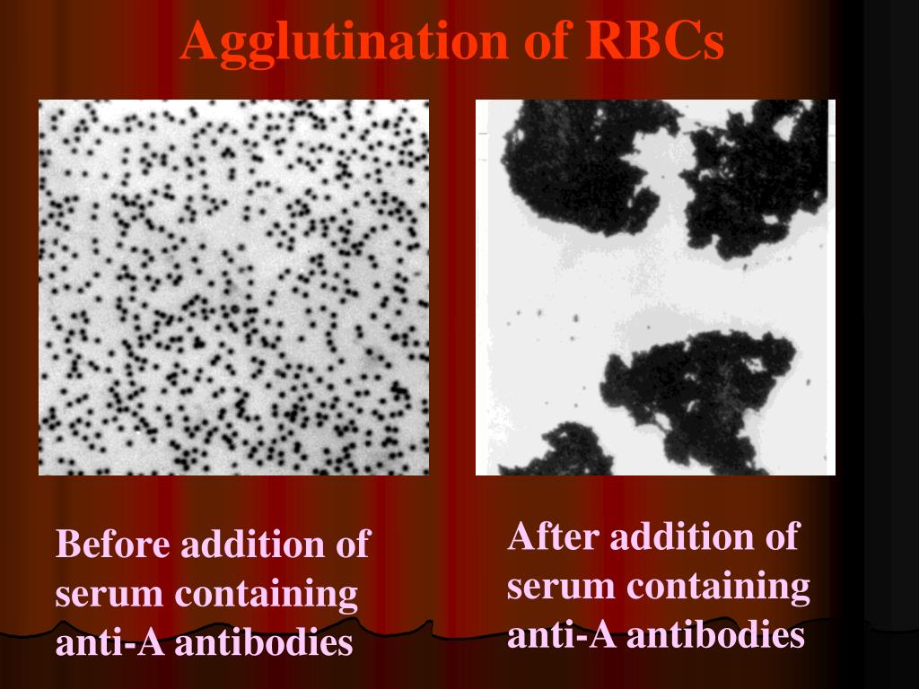 Agglutination of RBCs