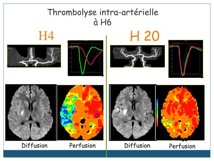 Thrombolyse intra-artérielle à H6