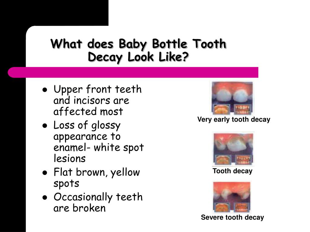 What does Baby Bottle Tooth Decay Look Like?
