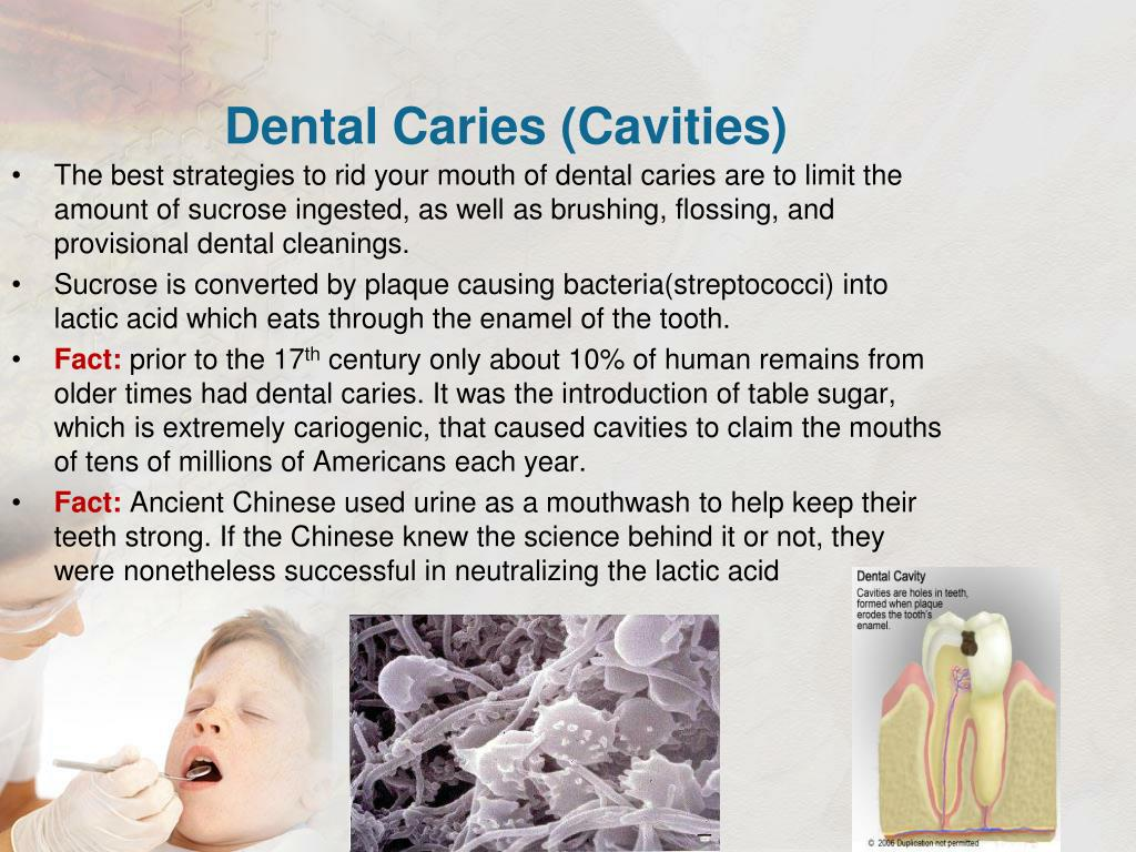 Dental Caries (Cavities)