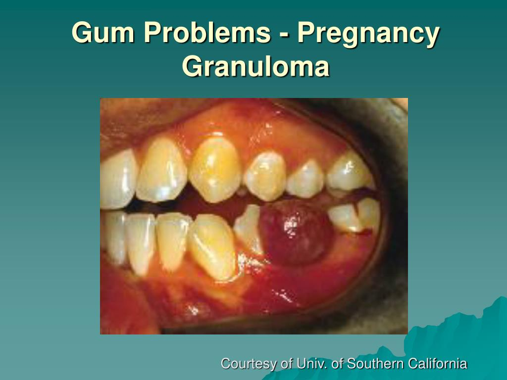 Gum Problems - Pregnancy Granuloma