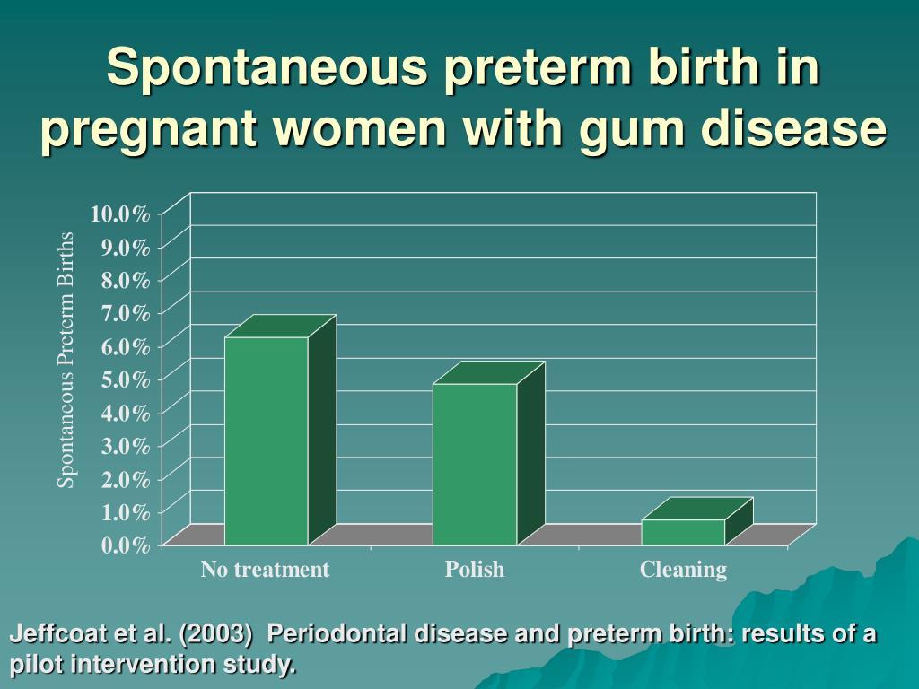Spontaneous preterm birth in pregnant women with gum disease
