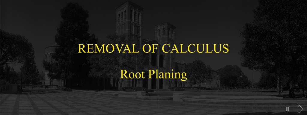 REMOVAL OF CALCULUS