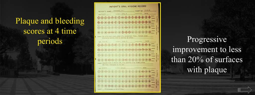 Plaque and bleeding scores at 4 time periods