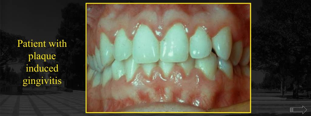 Patient with plaque induced gingivitis