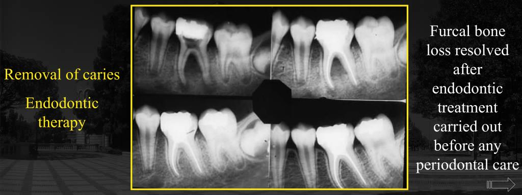 Furcal bone loss resolved after endodontic treatment carried out before any periodontal care