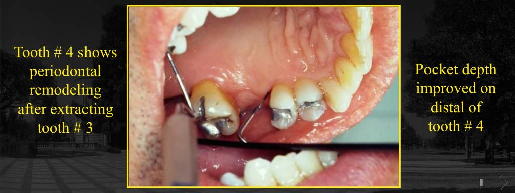 Tooth # 4 shows periodontal remodeling after extracting tooth # 3
