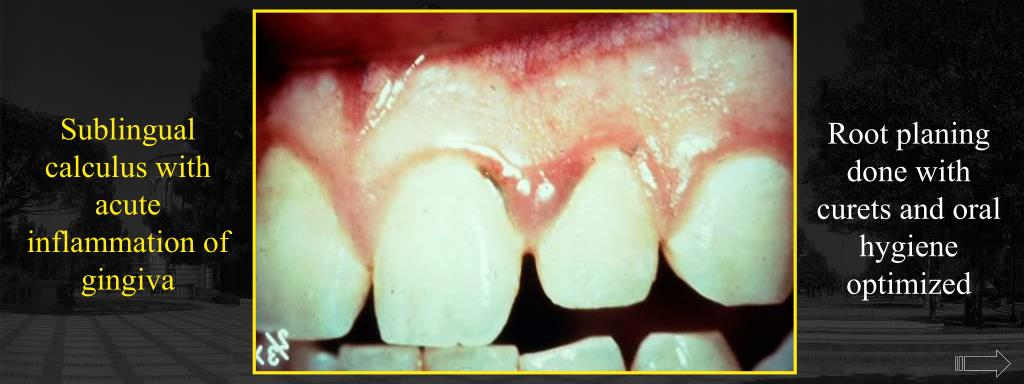 Sublingual calculus with acute inflammation of gingiva