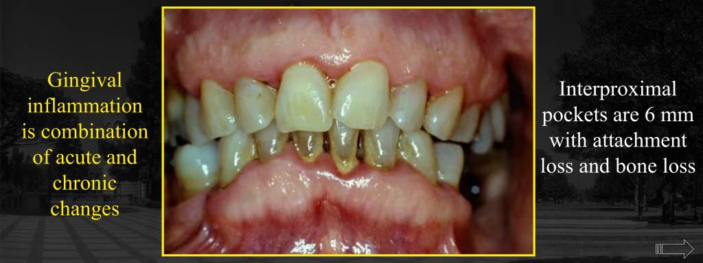Gingival inflammation is combination of acute and chronic changes