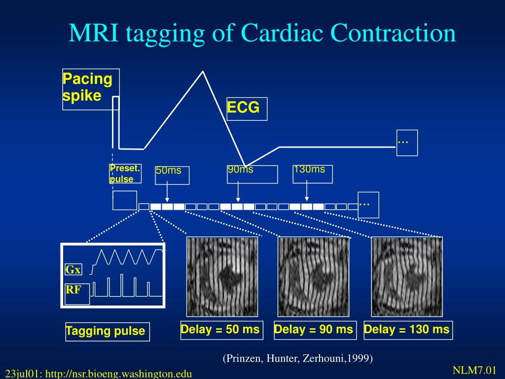 MRI tagging of Cardiac Contraction