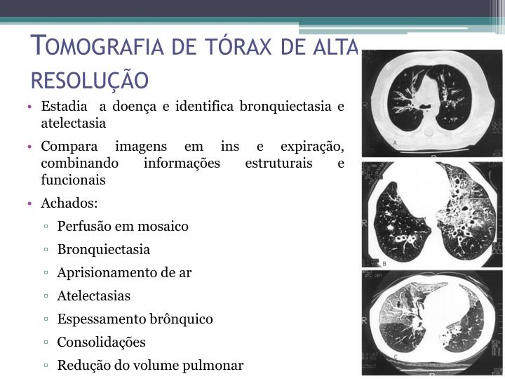 Tomografia de tórax de alta resolução