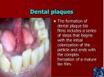 dental plaques
