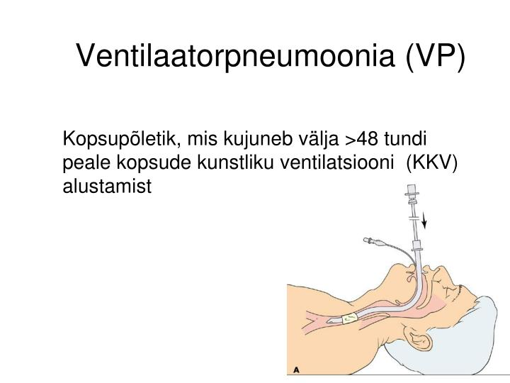 Ventilaatorpneumoonia (VP)