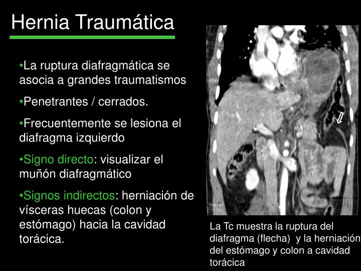 Hernia Traumática