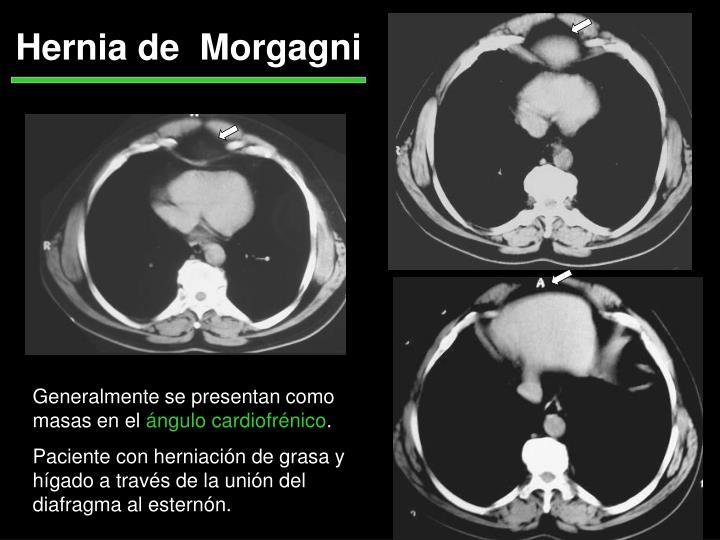 Hernia de  Morgagni