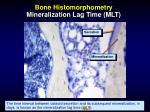 bone histomorphometry mineralization lag time mlt