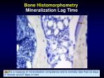 bone histomorphometry mineralization lag time