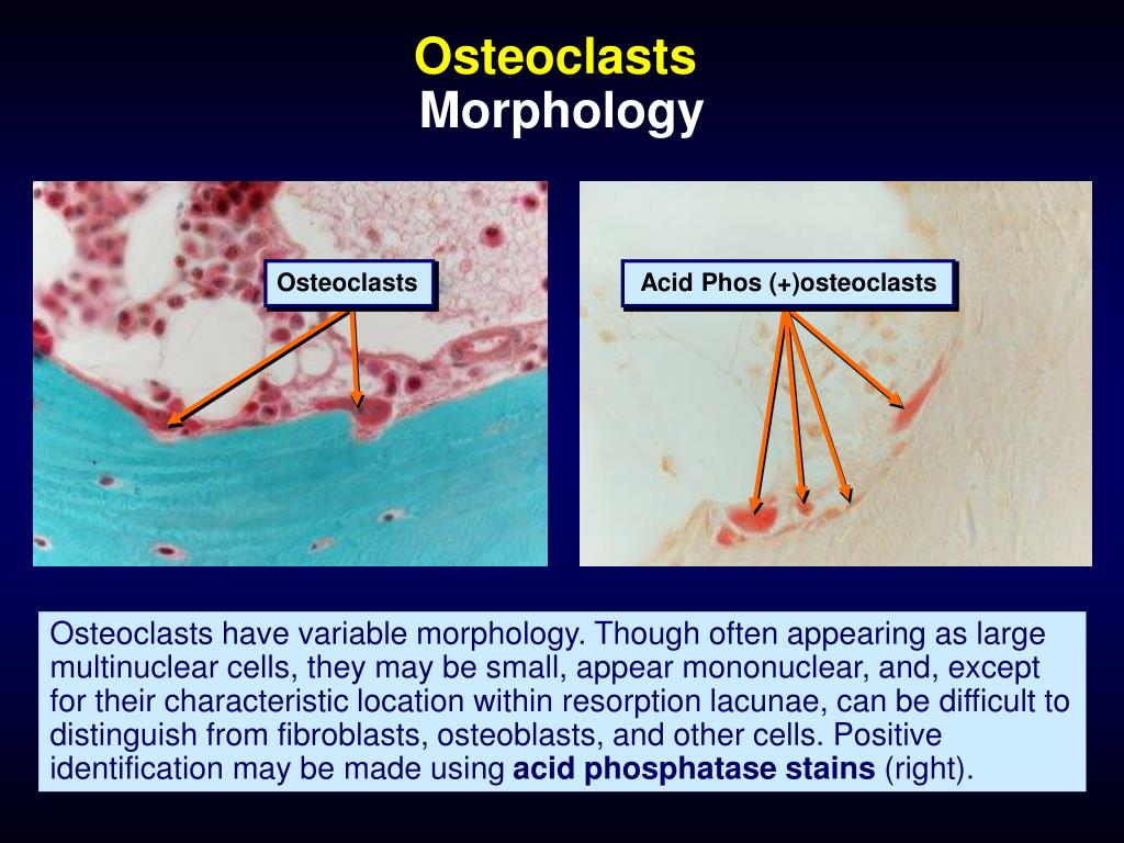 Osteoclasts
