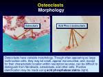osteoclasts morphology