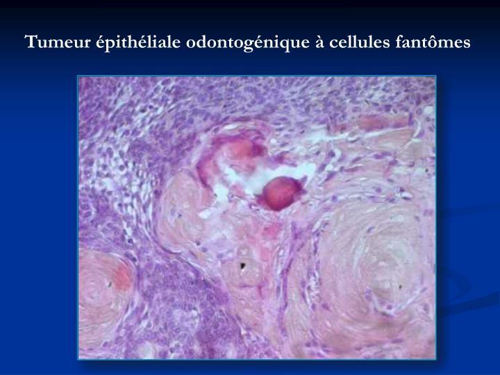 Ppt aspect anatomo pathologique des tumeurs des - Couche pathologique apres accouchement ...
