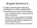 brugada syndrome is
