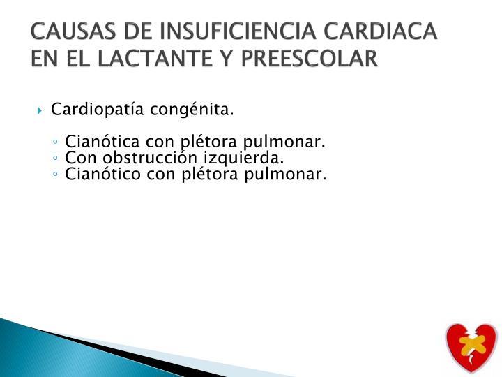 CAUSAS DE INSUFICIENCIA CARDIACA EN EL LACTANTE Y PREESCOLAR