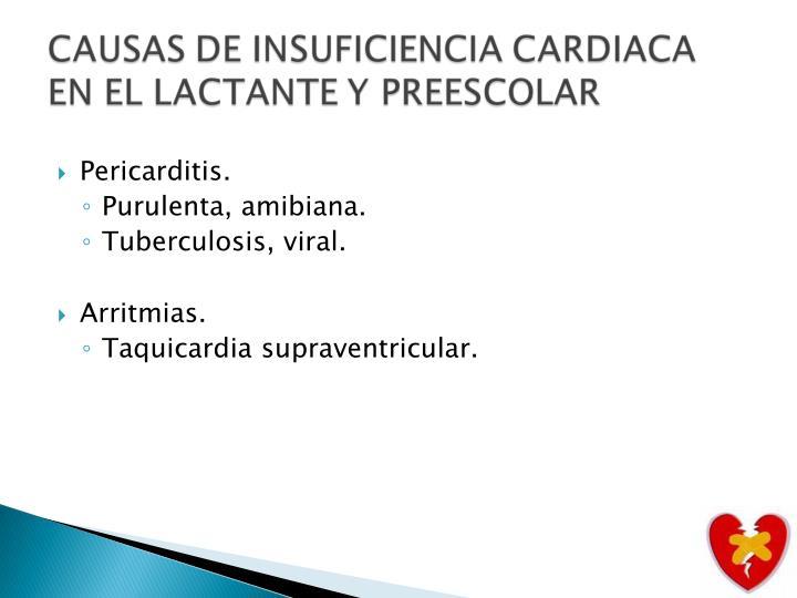 Pericarditis.