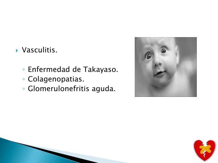 Vasculitis.