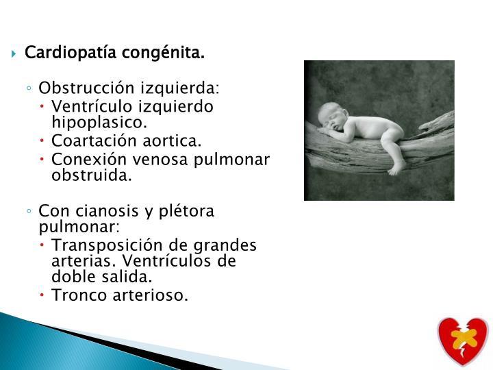 Cardiopatía congénita.