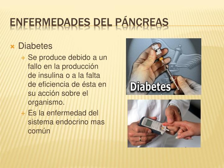 PPT - El Sistema Endocrino PowerPoint Presentation - ID:900790