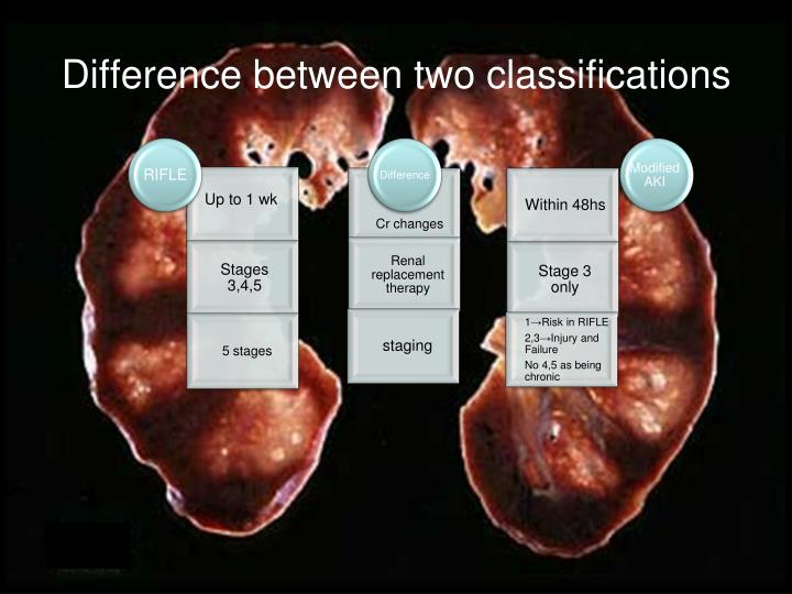 Difference between two classifications
