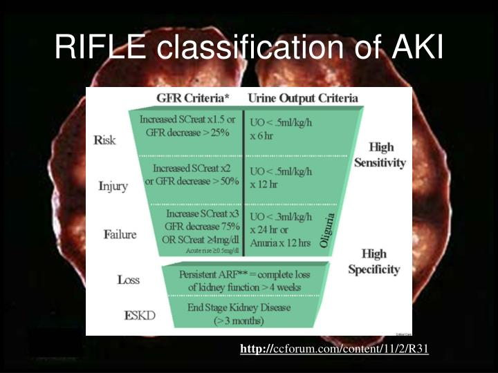 RIFLE classification of AKI