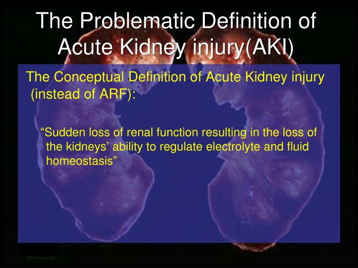 The Problematic Definition of Acute Kidney injury(AKI)