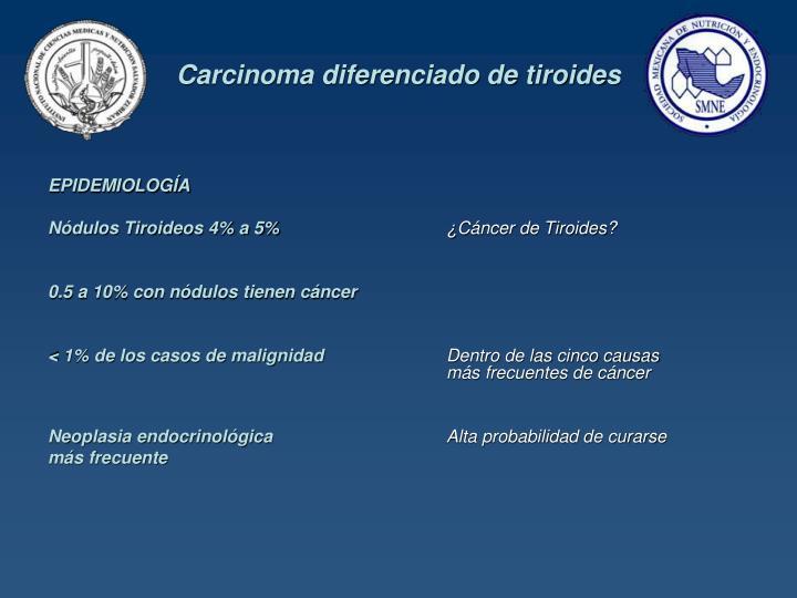 Carcinoma diferenciado de tiroides1