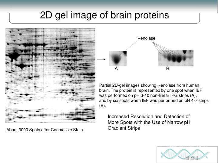 2D gel image of brain proteins