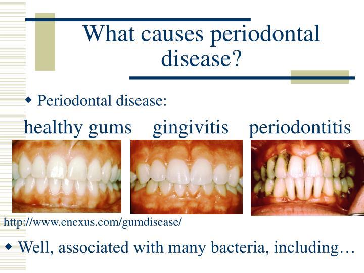etiology of periodontal disease ppt link