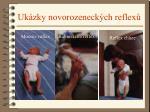 uk zky novorozeneck ch reflex