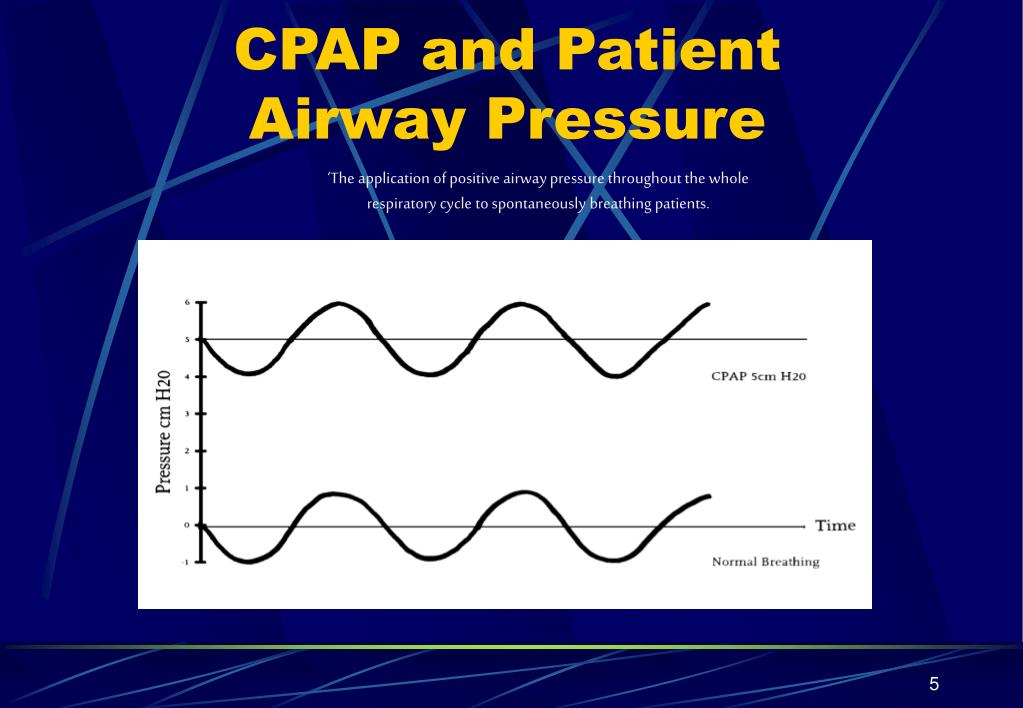 CPAP and Patient