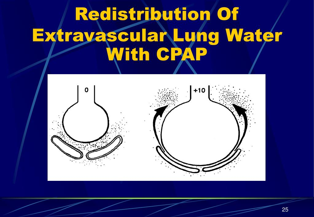 Redistribution Of Extravascular Lung Water With CPAP